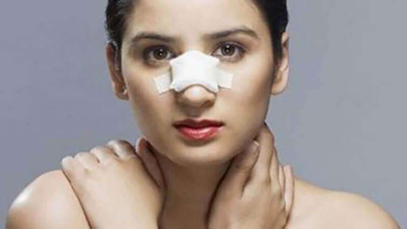 Cần bao nhiêu thời gian để mũi hết sưng và lành sau khi phẫu thuật