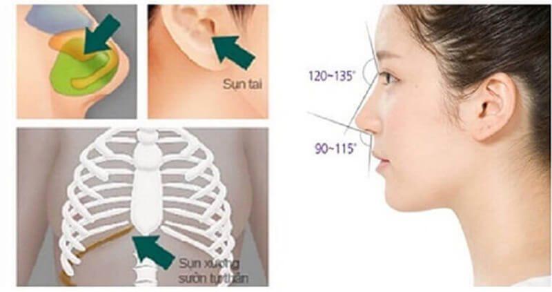 Nâng mũi bọc sụn tự thân một phương pháp được lựa chọn nhiều nhất