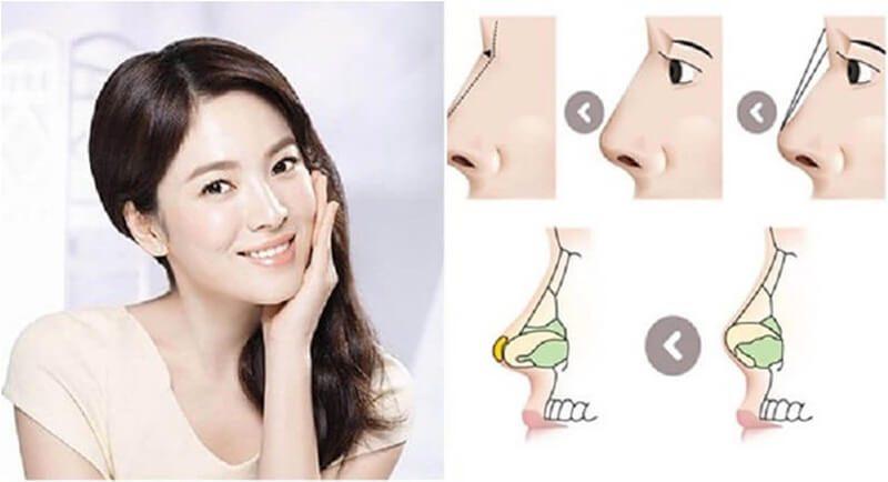Nâng mũi bọc sụn sline giúp mọi phụ nữ có sóng mũi cao tây và đẹp tự nhiên