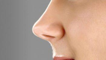 Nâng mũi cấu trúc là gì? Vì sao nên nâng mũi cấu trúc?