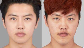 Nâng mũi cho nam giới đẹp cuốn hút chuẩn mỹ nam Hàn